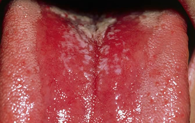 Tongue Problems: Types, Causes, and Diagnosis - Healthline