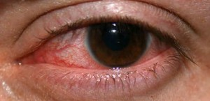 herpes of the eye photos