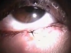 herpes of the eye pictures