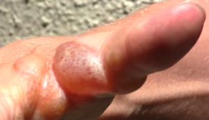 poison ivy rash blister