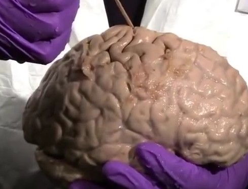 central sulcus - function, location, anatomy, pictures, Human Body