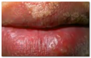 fordcye spots on lips pictures