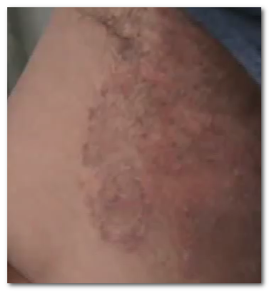 I am wondering about psoriasis causes of the intertrigo 2