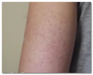 keratosis pilaris photos