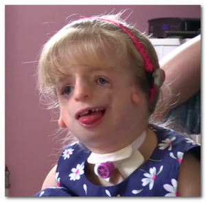 treacher collins syndrome photos