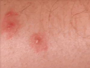 bed bug bite marks images