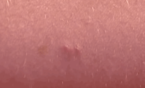 bed bug bite pictures