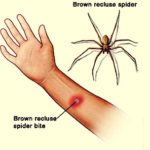 Brown Recluse Bite – All You Need to Know