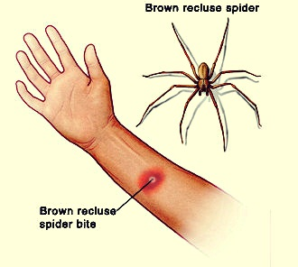 3 Brown Recluse Bite Stages Medical Treatment and Self