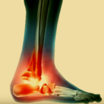 Pinched Nerve in Ankle
